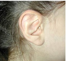 Ear Surgery After Photo by Craig Mezrow, MS, MD, FACS; Bala Cynwyd, PA - Case 33995