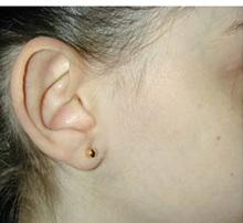 Ear Surgery Before Photo by Craig Mezrow, MS, MD, FACS; Bala Cynwyd, PA - Case 33995