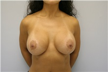 Breast Implant Removal Before Photo by G. Robert Meger, MD; Phoenix, AZ - Case 34329