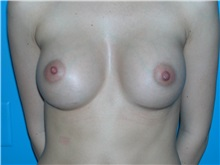 Breast Augmentation After Photo by William LoVerme, MD; Wellesley, MA - Case 20132