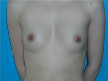 Breast Augmentation Before Photo by William LoVerme, MD; Wellesley, MA - Case 20132