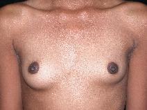 Breast Augmentation After Photo by Michele DeVito, MD FACS; Scottsdale, AZ - Case 10185