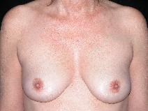 Breast Augmentation After Photo by Michele DeVito, MD FACS; Scottsdale, AZ - Case 10186