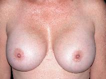 Breast Augmentation Before Photo by Michele DeVito, MD FACS; Scottsdale, AZ - Case 10186