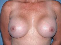 Breast Augmentation Before Photo by Michele DeVito, MD FACS; Scottsdale, AZ - Case 10188