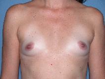 Breast Augmentation After Photo by Michele DeVito, MD FACS; Scottsdale, AZ - Case 10189