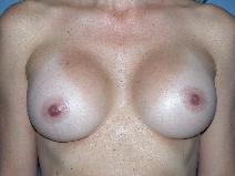 Breast Augmentation Before Photo by Michele DeVito, MD FACS; Scottsdale, AZ - Case 10189