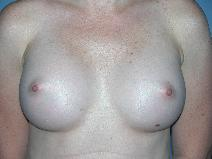 Breast Augmentation Before Photo by Michele DeVito, MD FACS; Scottsdale, AZ - Case 10190