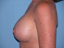 Breast Augmentation After Photo by Michele DeVito, MD FACS; Scottsdale, AZ - Case 9975