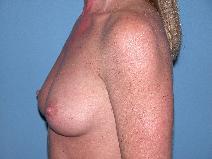 Breast Augmentation Before Photo by Michele DeVito, MD FACS; Scottsdale, AZ - Case 9975