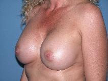 Breast Augmentation After Photo by Michele DeVito, MD FACS; Scottsdale, AZ - Case 9977