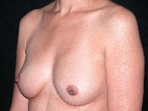 Breast Augmentation Before Photo by Michele DeVito, MD FACS; Scottsdale, AZ - Case 9978