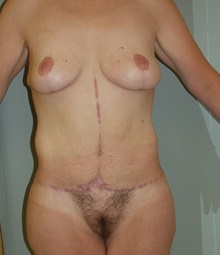 Body Contouring After Photo by David Branch, MD; Bangor, ME - Case 39693