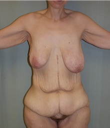 Body Contouring Before Photo by David Branch, MD; Bangor, ME - Case 39693