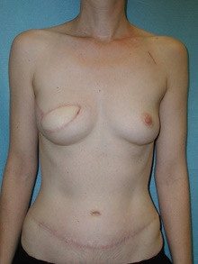 Breast Reconstruction After Photo by David Branch, MD; Bangor, ME - Case 39868