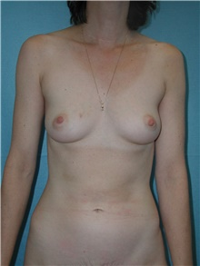 Breast Reconstruction Before Photo by David Branch, MD; Bangor, ME - Case 39868