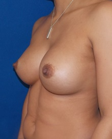 Breast Augmentation After Photo by Navin Singh, MD; McLean, VA - Case 39656
