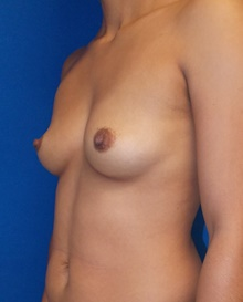 Breast Augmentation Before Photo by Navin Singh, MD; McLean, VA - Case 39656