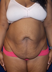 Tummy Tuck Before Photo by Navin Singh, MD; McLean, VA - Case 39657