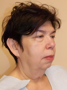 Facelift Before Photo by Navin Singh, MD; McLean, VA - Case 39658