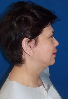 Facelift After Photo by Navin Singh, MD; McLean, VA - Case 39658
