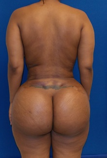 Buttock Lift with Augmentation After Photo by Navin Singh, MD; McLean, VA - Case 39659