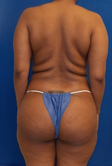 Buttock Lift with Augmentation Before Photo by Navin Singh, MD; McLean, VA - Case 39659