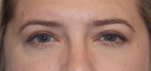 Eyelid Surgery After Photo by Navin Singh, MD; McLean, VA - Case 39662