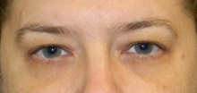 Eyelid Surgery Before Photo by Navin Singh, MD; McLean, VA - Case 39662