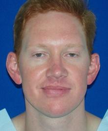 Ear Surgery Before Photo by Navin Singh, MD; McLean, VA - Case 40072