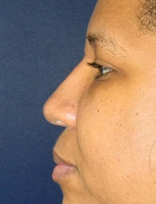 Injectable Fillers After Photo by Navin Singh, MD; McLean, VA - Case 40074