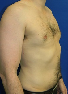 Male Breast Reduction After Photo by Navin Singh, MD; McLean, VA - Case 40075