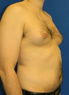 Male Breast Reduction Before Photo by Navin Singh, MD; McLean, VA - Case 40075