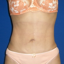 Liposuction After Photo by Navin Singh, MD; McLean, VA - Case 40380
