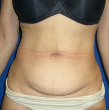 Liposuction Before Photo by Navin Singh, MD; McLean, VA - Case 40380