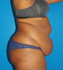 Tummy Tuck Before Photo by Navin Singh, MD; McLean, VA - Case 40382