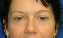 Botulinum Toxin Before Photo by Navin Singh, MD; McLean, VA - Case 40383