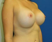 Breast Augmentation After Photo by Navin Singh, MD; McLean, VA - Case 40384