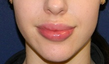 Lip Augmentation / Enhancement After Photo by Navin Singh, MD; McLean, VA - Case 40389