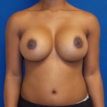 Breast Augmentation After Photo by Navin Singh, MD; McLean, VA - Case 40390