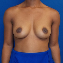 Breast Augmentation Before Photo by Navin Singh, MD; McLean, VA - Case 40390