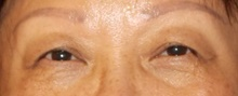 Eyelid Surgery Before Photo by Navin Singh, MD; McLean, VA - Case 40653