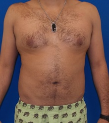 Liposuction After Photo by Navin Singh, MD; McLean, VA - Case 40676