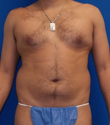 Liposuction Before Photo by Navin Singh, MD; McLean, VA - Case 40676