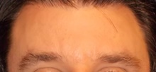 Botulinum Toxin After Photo by Navin Singh, MD; McLean, VA - Case 40677