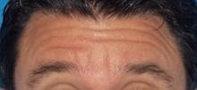 Botulinum Toxin Before Photo by Navin Singh, MD; McLean, VA - Case 40677