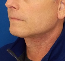 Neck Lift After Photo by Navin Singh, MD; McLean, VA - Case 40678