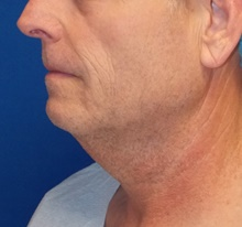 Neck Lift Before Photo by Navin Singh, MD; McLean, VA - Case 40678