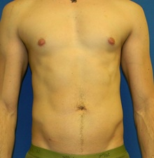 Body Contouring After Photo by Navin Singh, MD; McLean, VA - Case 40702