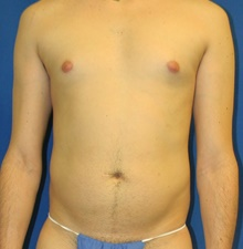 Body Contouring Before Photo by Navin Singh, MD; McLean, VA - Case 40702